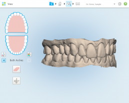 why-youre-likely-an-ideal-candidate-for-invisalign-3d-model-2