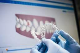 Why You're Likely an Ideal Candidate for Invisalign - 1