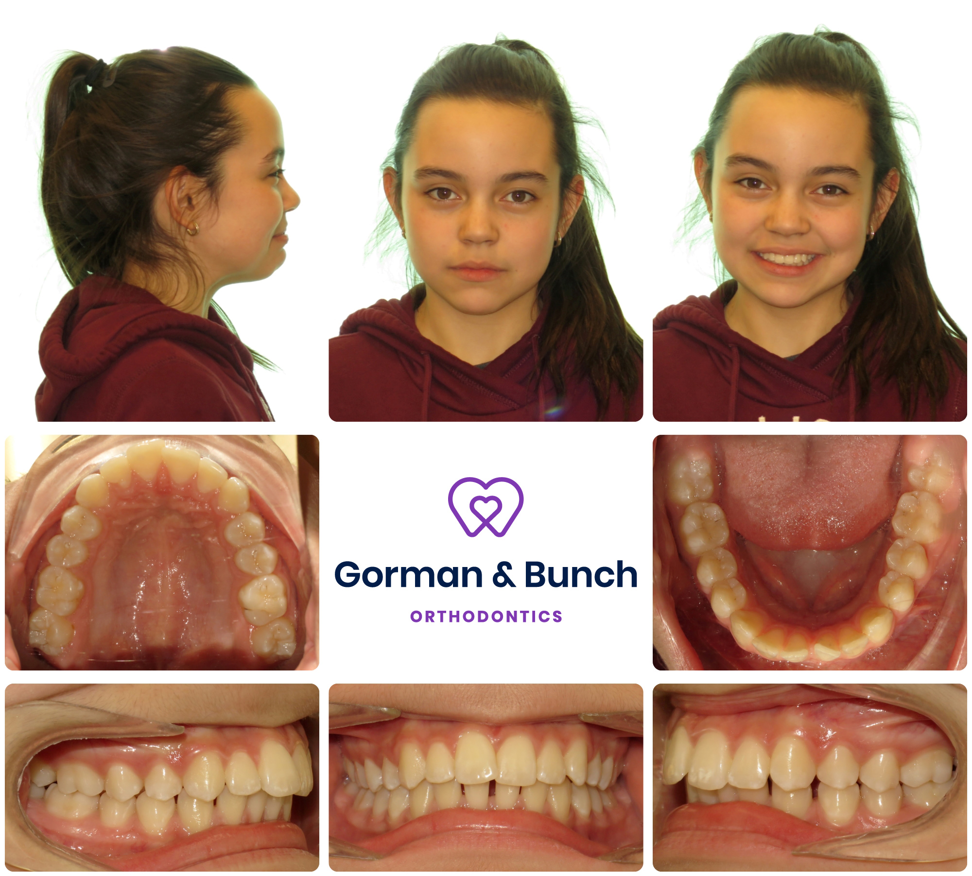 invisalign before and after - overbite - carmel indiana - fnv - 1