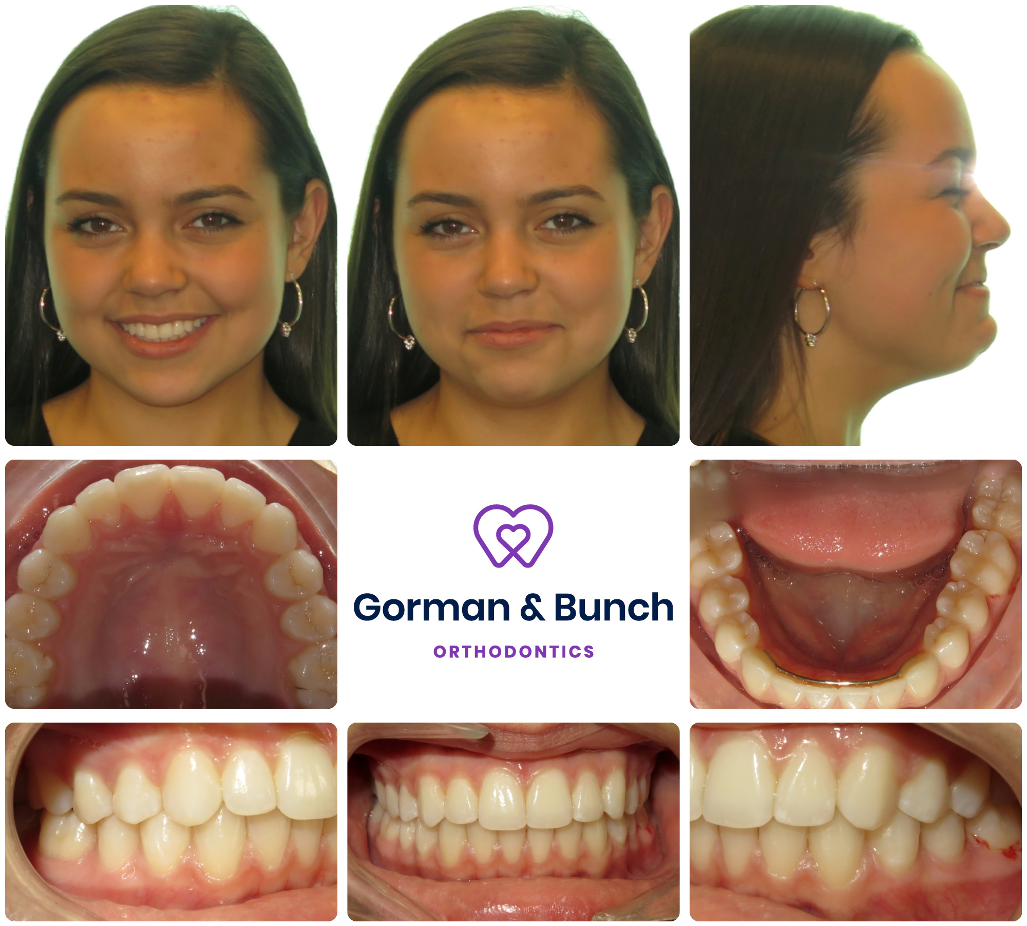 invisalign before and after - overbite - carmel indiana - fnv - 2