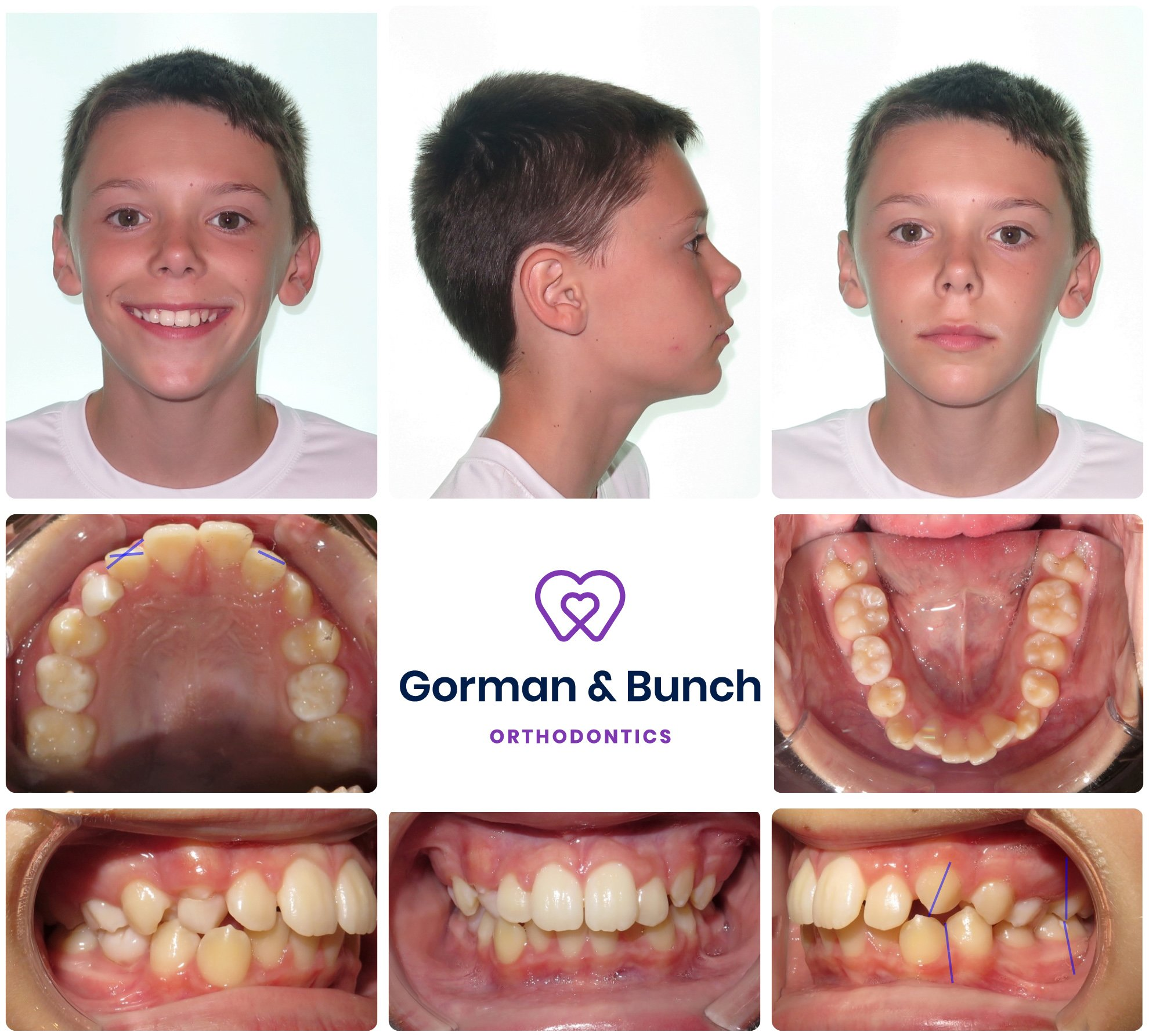 invisalign before and after - overcrowding - westfield indiana - jl - 2