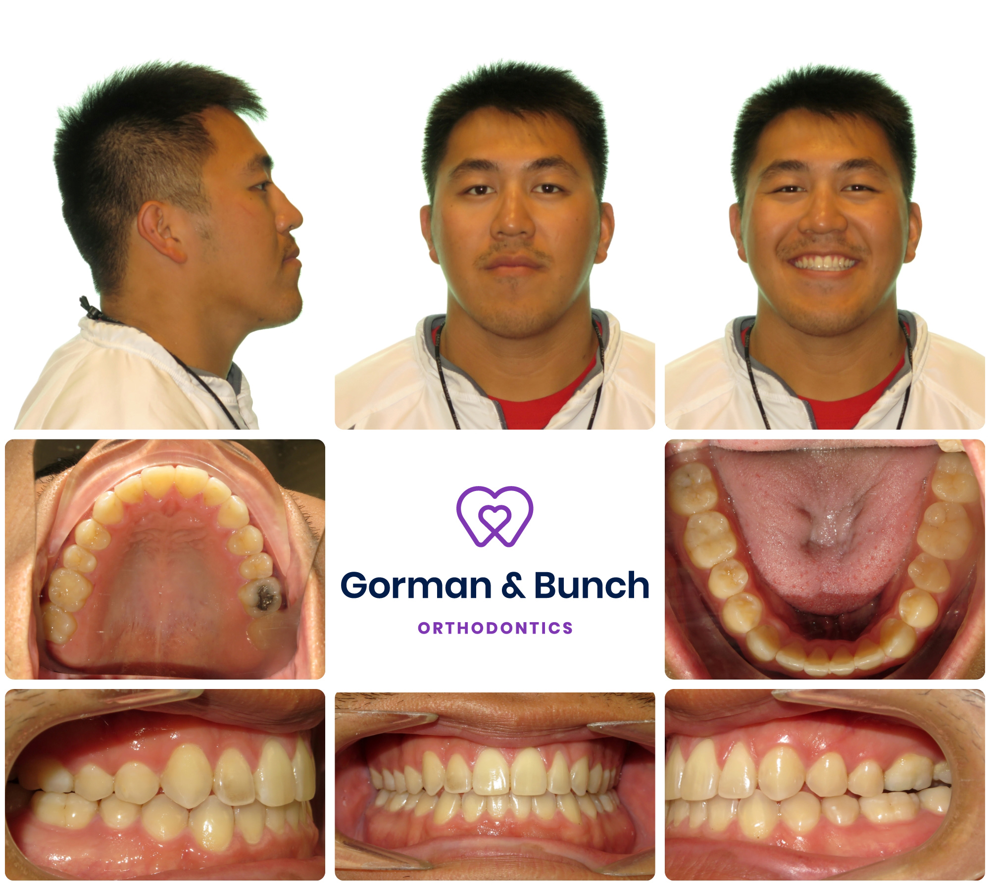 invisalign before and after - underbite - carmel indiana - cc - 2